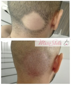 micropigmentación-capilar-resultados-adrid-opiniones-testimonios-antes-después
