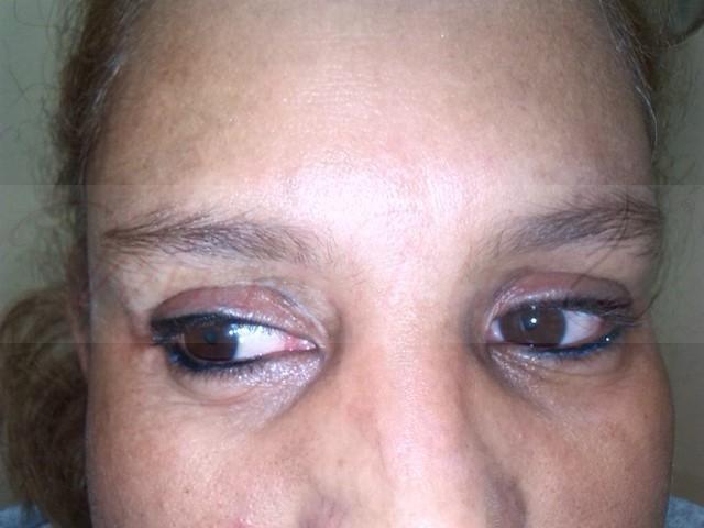 micropigmentación-vitíligo-madrid-tratamiento