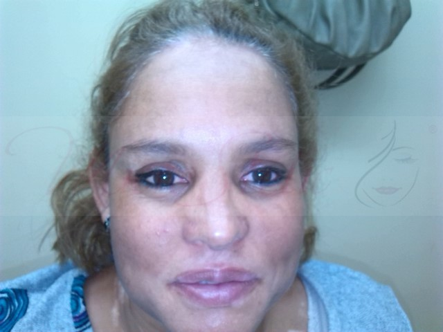 maquillaje-permanente-vitíligo