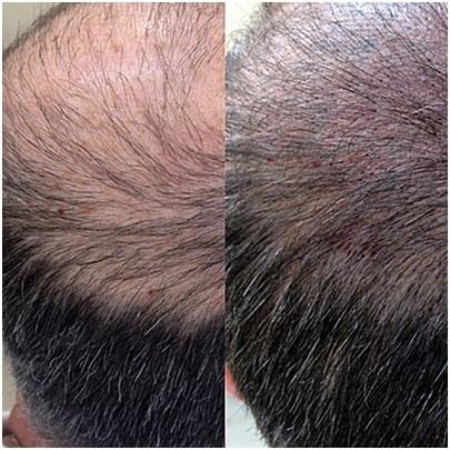 micropigmentación-capilar-madrid-aldemar-duración-resultados-tricopigmentación-pelo