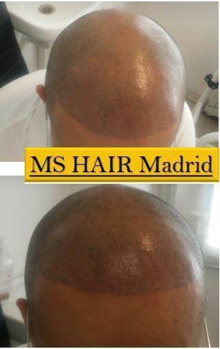 micropigmentación-capilar-madrid-resultados-antes-después-milanuncios