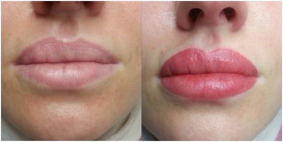 micropigmentación-labios-madrid