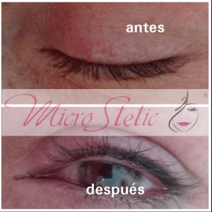 micropigmentación-madrid-ojos-eyeliner-fotos-dolor-antes-después