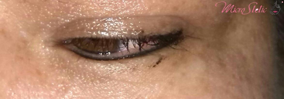 micropigmentación-ojos-madrid-resultados-fotos-opiniones-centros