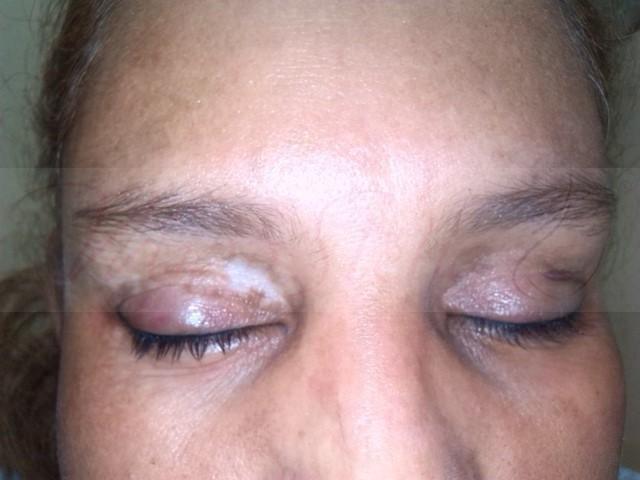 micropigmentación-vitíligo