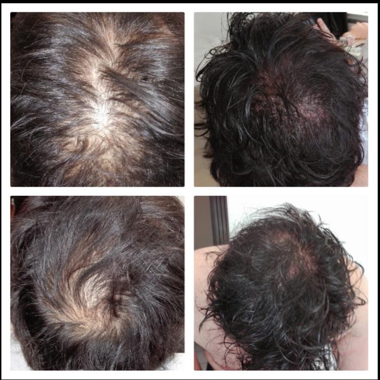 micropigmentación-capilar-clínicas-tricopigmentación-madrid-alopecia-precio