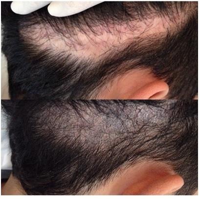 tricopigmentación-madrid-capilar-masculina-precio-centros-opiniones